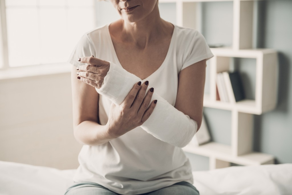 Injured woman with arm cast